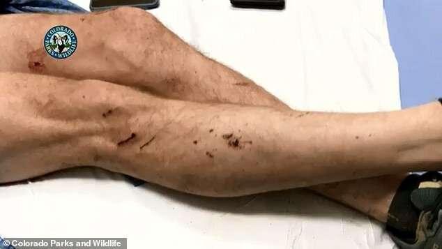 Бегун из Колорадо рассказал, как ему удалось победить пуму голыми руками   Интересное